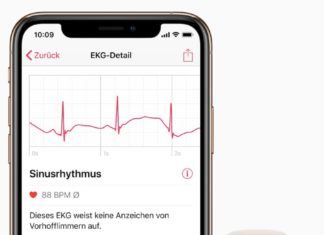 ekg apple watch romania
